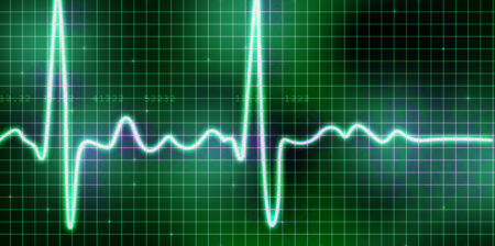 Skærm der viser hjerteflimmer