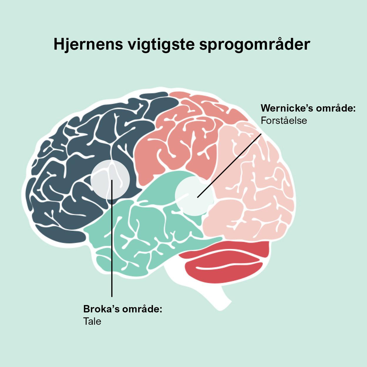 Hjernen hvor sidder sproget